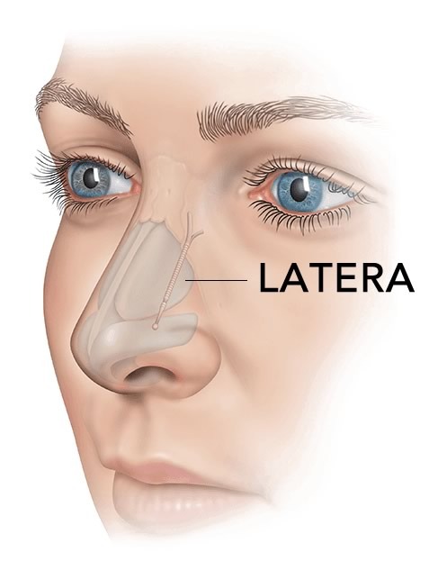 Latera Nose Implant for Nasal Obstruction
